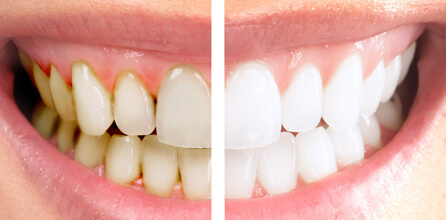 Teeth Whitening Services - family dentistry South Jordan, UT